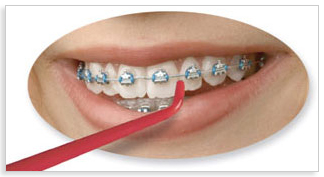 Great for Braces and Bridgework.